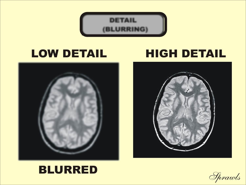 Magnetic Resonance Image Characteristics