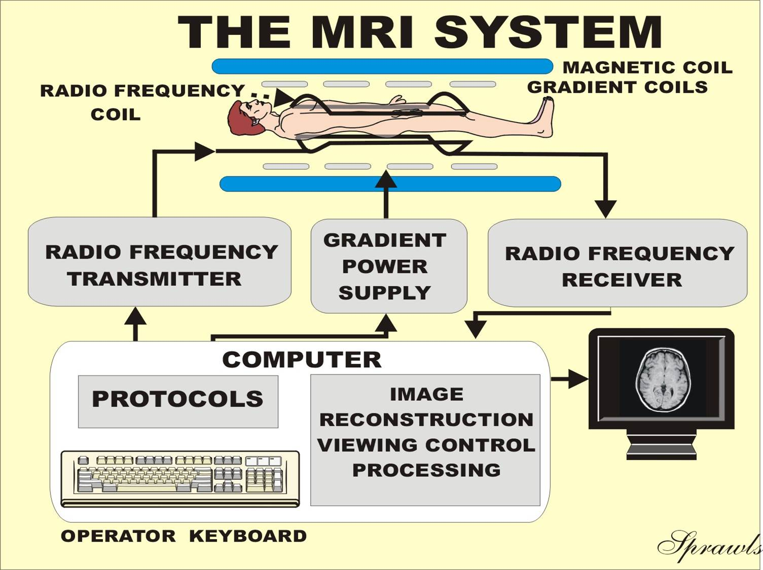 Diagram Of Mri Circuits Symbols Diagrams 17pw15 8 Circuit Magnetic Resonance Imaging Rh Sprawls Org Mrigal Fish Mrigala