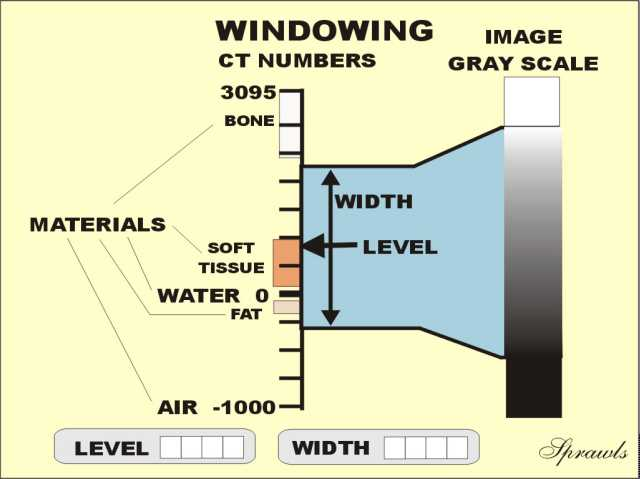 X ray image formation and contrast for Window width
