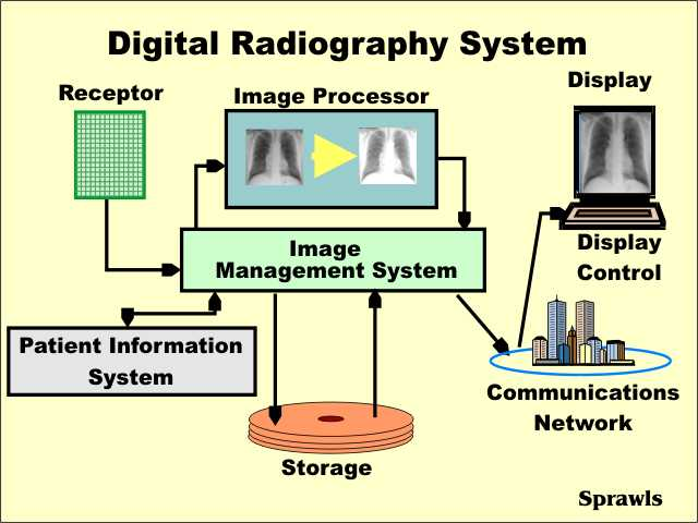 Advantages Of Digital Radiographs. Working Capital For Business. Debt Relief Legal Clinic How To Donate A Boat. Sales Order Vs Invoice Bidding On Jobs Online. Johnson Controls Building Efficiency. Network Security Tutorials Rules For Sep Ira. Medicare Supplemental Insurance Ohio. Get Money When You Open A Checking Account. Cleanser For Oily Acne Prone Skin