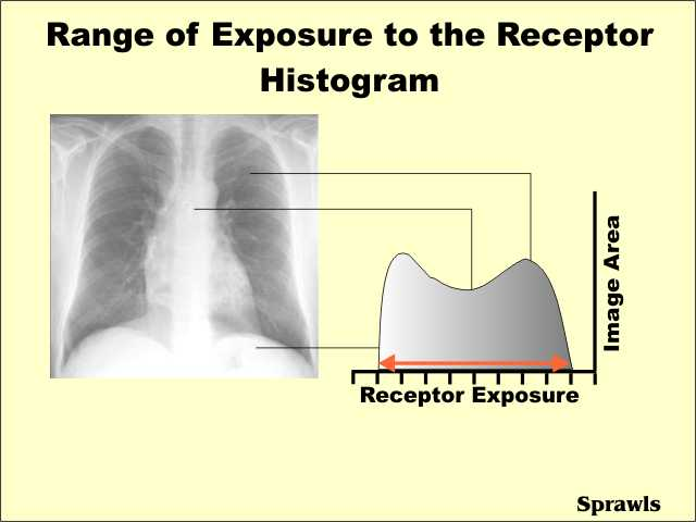 Digital Radiography. Before We Proceed With Exploring The Characteristics Of Digital Receptors Let's Develop Concept Exposure Histogram As See Here. Wiring. Radiography Of A Camera Diagram At Scoala.co