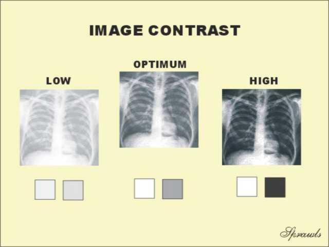 Film Contrast Characteristics - SPRAWLS