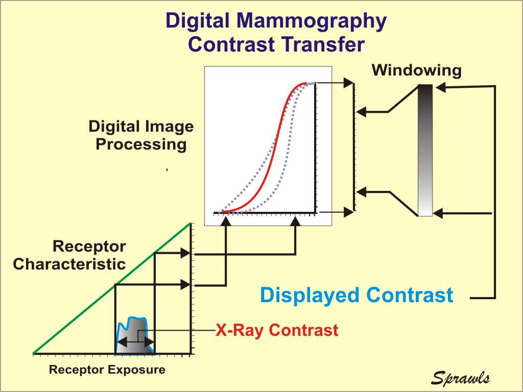 The Physics And Technology Of Mammography X Ray Block Diagram Digital Provides Several Advantages Over Film For Optimizing Contrast Transfer From Breast To Image Display Maximizing