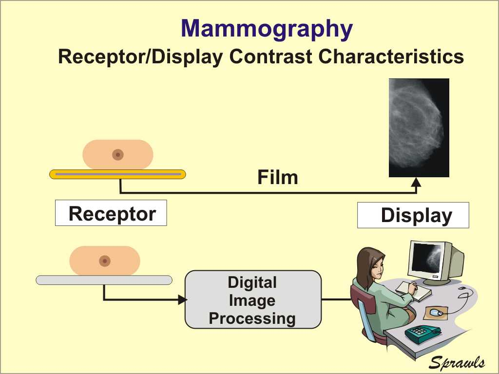 The Physics And Technology Of Mammography Ppt Block Diagram Reduction